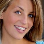 femme-orthodontie-sourire